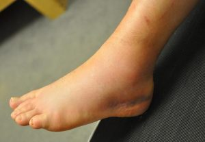 sprained ankle physiotherapist